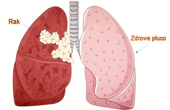rak płuc przerzut na zdrowe płuco