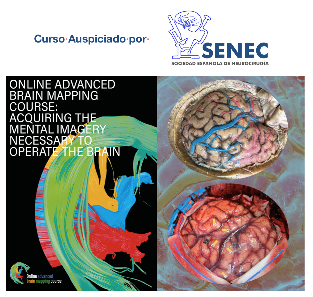 Online advanced brain mapping course - acquiring the mental imagery necessary to operate the brain