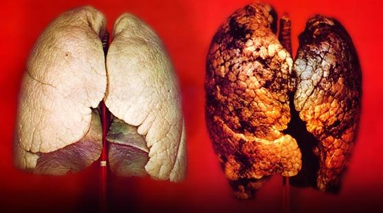 rak płuc objawy zdjęcie