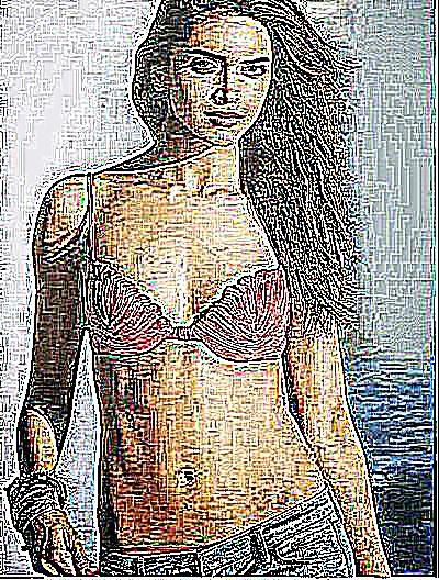 Prostate féminine
