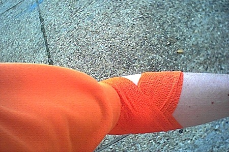 My arm in a bandage