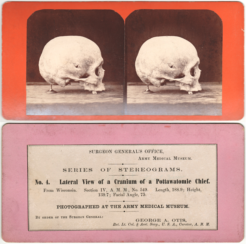 For sale: stereoview of a Potawatomi Indian skull.