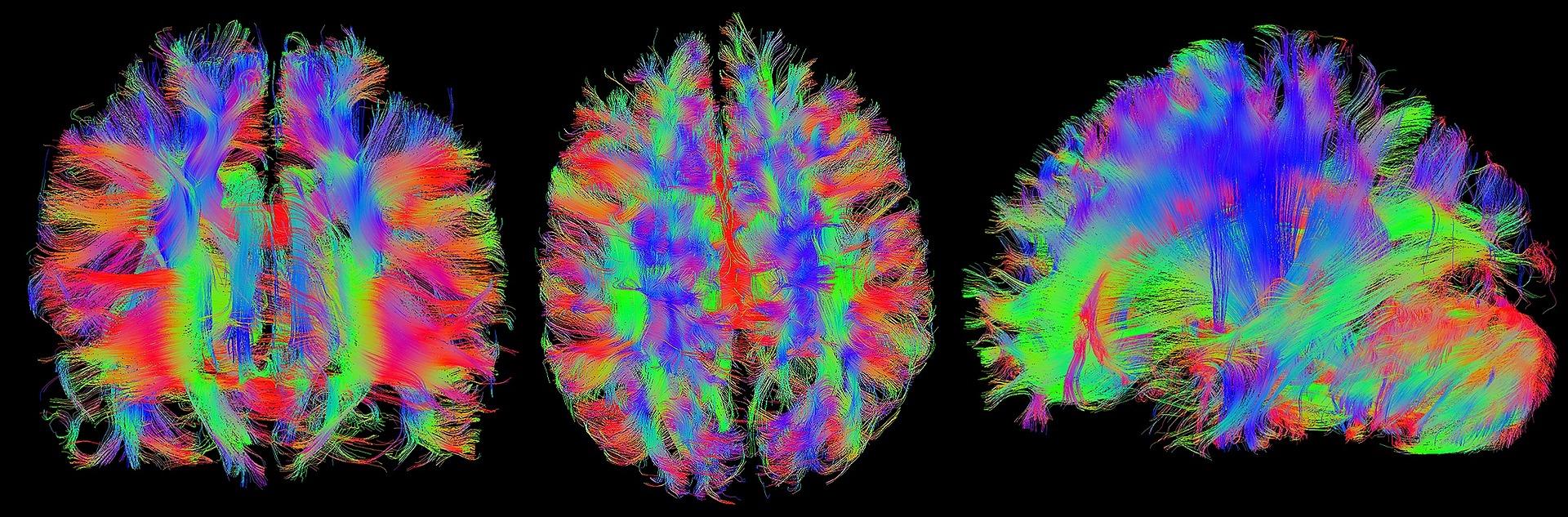 Разликата между мозъка на мъжете и жените