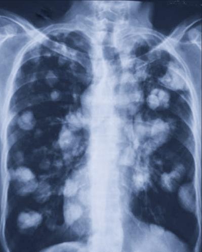 RTG - mnogie przerzuty nowotworowe na płucach