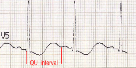 null at https://dl.dropboxusercontent.com/s/u2quvxn2ustnhsw/Potassium-%20ECG%20changes%202.png