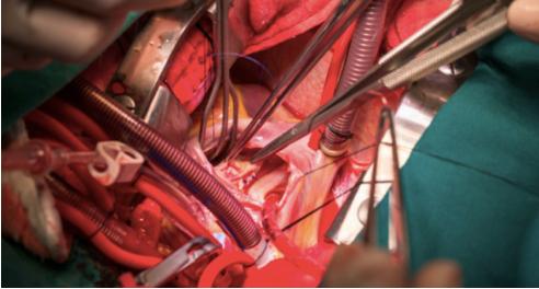 Cirugía mínimamente invasiva en la reparación de válvula mitral